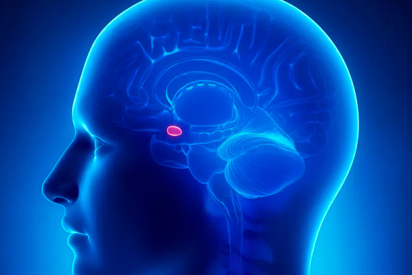 tumor de hipófisis