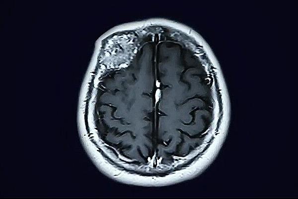 craneotomía para la extirpación de un tumor cerebral